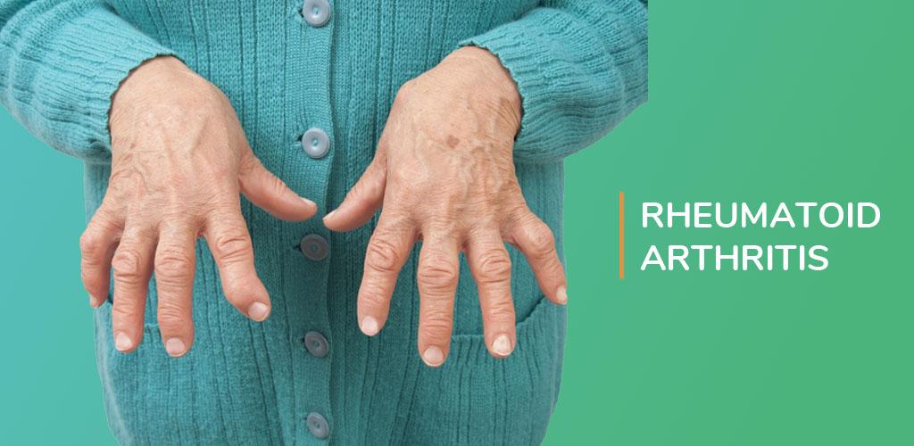 Rheumatoid Arthritis Physioline